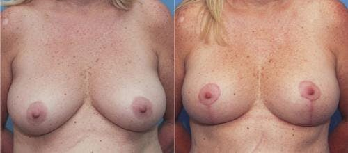 Breast Lift Gallery - Patient 58179117 - Image 1