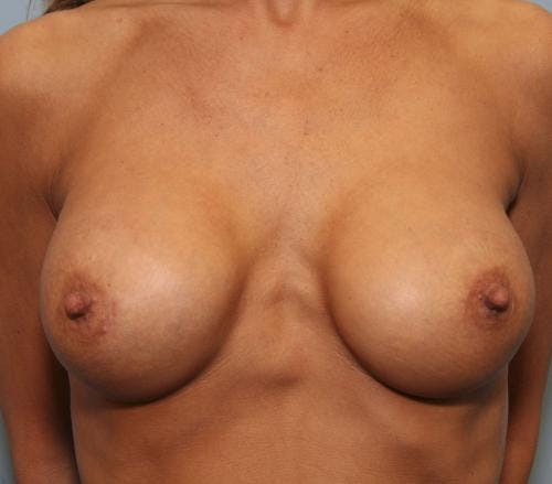 Breast Implant Revision Gallery - Patient 58179119 - Image 2