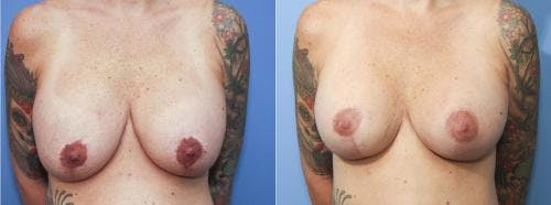 Breast Lift Gallery - Patient 58179118 - Image 1