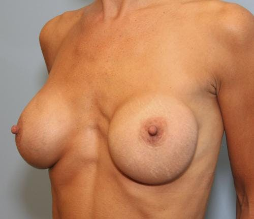 Breast Implant Revision Gallery - Patient 58179119 - Image 3