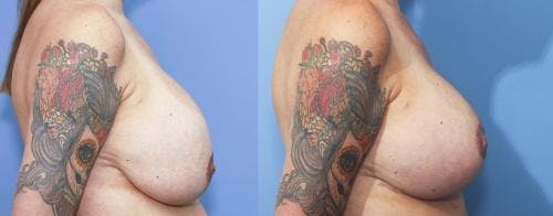 Breast Lift Gallery - Patient 58179118 - Image 2