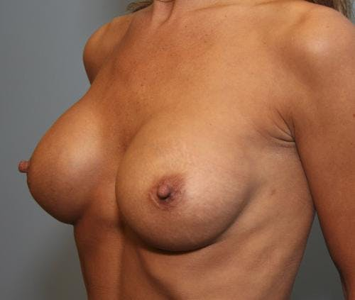 Breast Implant Revision Gallery - Patient 58179119 - Image 4