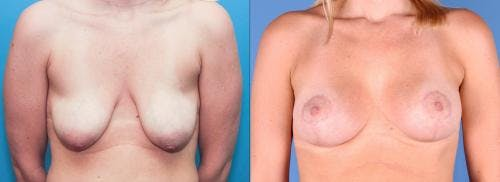 Breast Lift with Augmentation Gallery - Patient 58179121 - Image 1