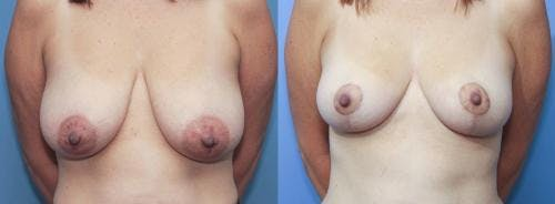 Breast Lift Gallery - Patient 58179120 - Image 1