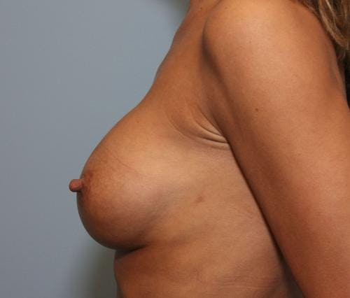Breast Implant Revision Gallery - Patient 58179119 - Image 6
