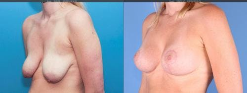 Breast Lift with Augmentation Gallery - Patient 58179121 - Image 2