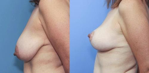 Breast Lift Gallery - Patient 58179120 - Image 2