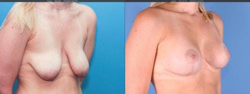 Breast Lift with Augmentation Gallery - Patient 58179121 - Image 3