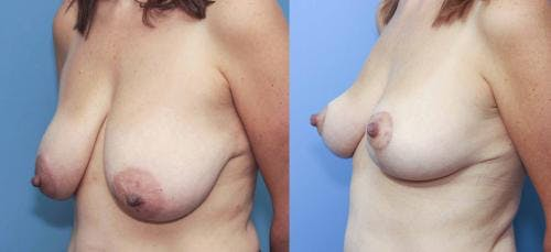Breast Lift Gallery - Patient 58179120 - Image 3