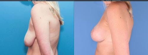 Breast Lift with Augmentation Gallery - Patient 58179121 - Image 4