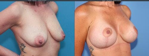 Breast Lift with Augmentation Gallery - Patient 58179123 - Image 2