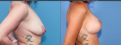 Breast Lift with Augmentation Gallery - Patient 58179123 - Image 3
