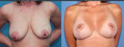 Breast Lift with Augmentation Gallery - Patient 58179123 - Image 1