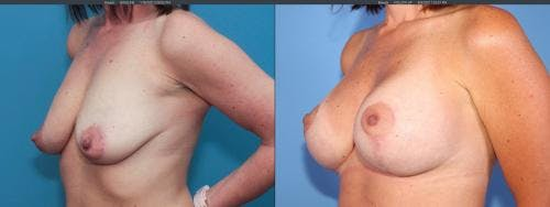 Breast Lift with Augmentation Gallery - Patient 58179123 - Image 4