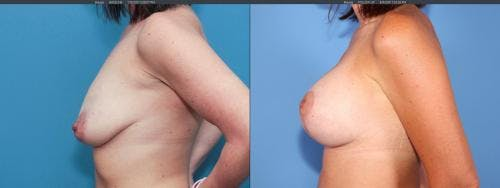 Breast Lift with Augmentation Gallery - Patient 58179123 - Image 5