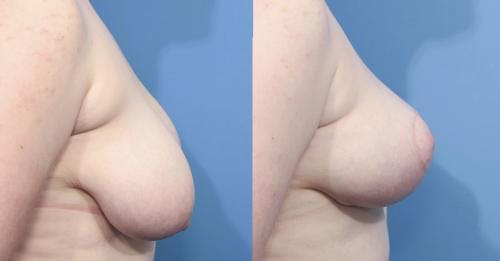 Breast Lift Gallery - Patient 58179125 - Image 2