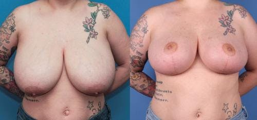 Breast Reduction Gallery - Patient 58179126 - Image 1