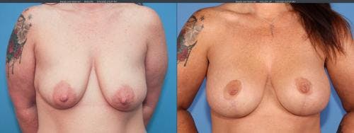 Breast Lift with Augmentation Gallery - Patient 58179128 - Image 1