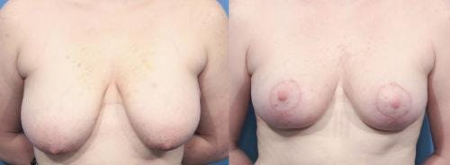 Breast Lift Gallery - Patient 58179125 - Image 1