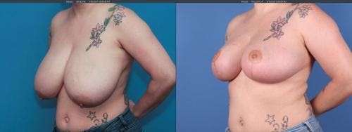 Breast Reduction Gallery - Patient 58179126 - Image 2