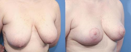 Breast Lift Gallery - Patient 58179125 - Image 3