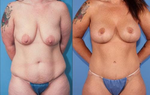 Breast Lift with Augmentation Gallery - Patient 58179128 - Image 2