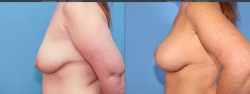 Breast Lift with Augmentation Gallery - Patient 58179128 - Image 3