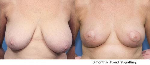 Breast Lift Gallery - Patient 58179127 - Image 1