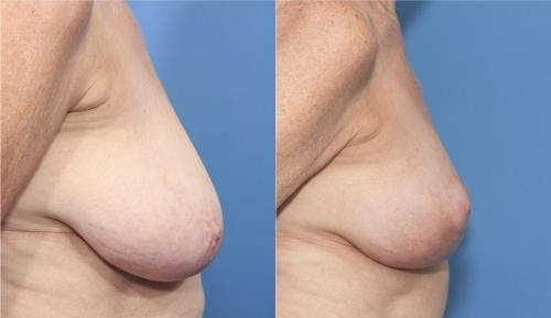 Breast Lift Gallery - Patient 58179127 - Image 2