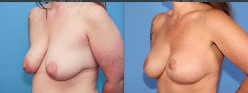 Breast Lift with Augmentation Gallery - Patient 58179128 - Image 4