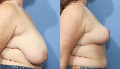 Breast Reduction Gallery - Patient 58179129 - Image 2
