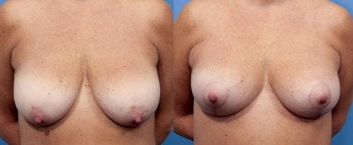 Breast Lift Gallery - Patient 58179131 - Image 1