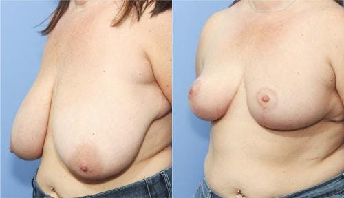 Breast Reduction Gallery - Patient 58179129 - Image 3
