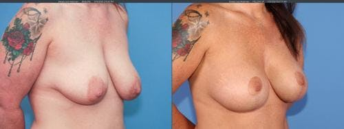 Breast Lift with Augmentation Gallery - Patient 58179128 - Image 6