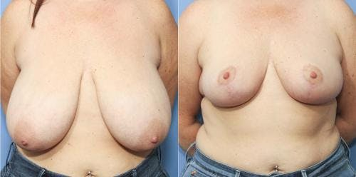 Breast Reduction Gallery - Patient 58179129 - Image 1