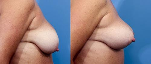 Breast Lift Gallery - Patient 58179131 - Image 3