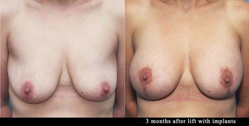 Breast Lift with Augmentation Gallery - Patient 58179132 - Image 1