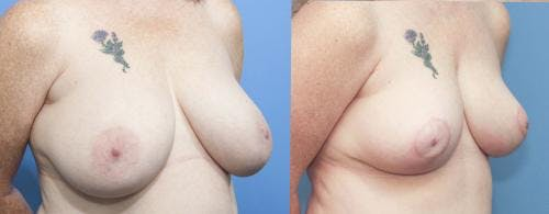 Breast Reduction Gallery - Patient 58179134 - Image 2
