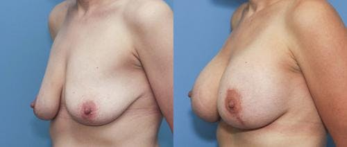 Breast Lift with Augmentation Gallery - Patient 58179132 - Image 2
