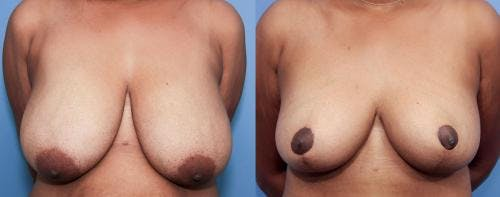 Breast Lift Gallery - Patient 58179133 - Image 1