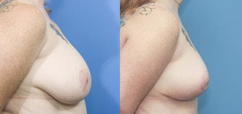 Breast Reduction Gallery - Patient 58179134 - Image 3