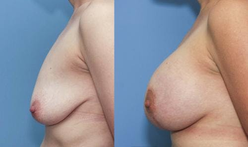 Breast Lift with Augmentation Gallery - Patient 58179132 - Image 3