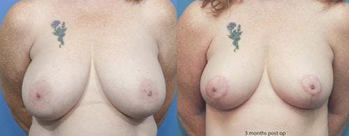 Breast Reduction Gallery - Patient 58179134 - Image 1
