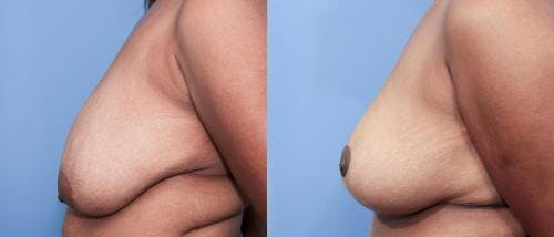 Breast Lift Gallery - Patient 58179133 - Image 2