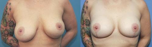 Breast Lift with Augmentation Gallery - Patient 58179135 - Image 1