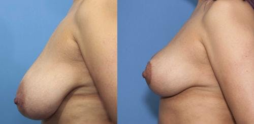 Breast Reduction Gallery - Patient 58179136 - Image 2