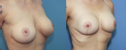 Breast Lift with Augmentation Gallery - Patient 58179135 - Image 2