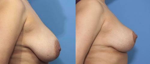Breast Reduction Gallery - Patient 58179136 - Image 3