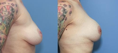Breast Lift with Augmentation Gallery - Patient 58179135 - Image 3