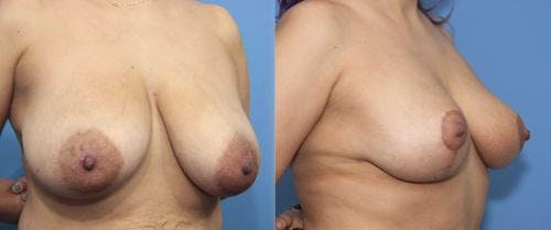 Breast Reduction Gallery - Patient 58179136 - Image 4